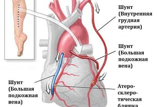 Рекомендации для пациентов после операции коронарного шунтирования