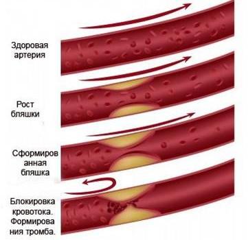 Стентування і коронарографія